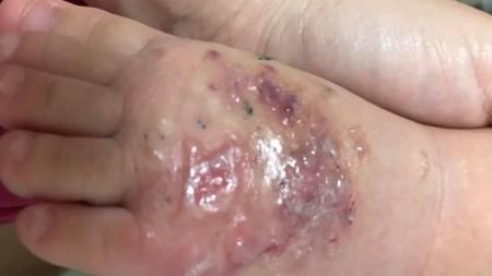 Criança pega infecção após brincar em praça de Tupã