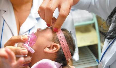 Governo estuda BPC permanente para pessoas com microcefalia