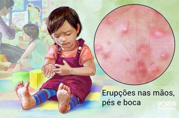 Informações indicam registro da síndrome Mão-Pé-Boca em Osvaldo Cruz