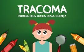 Secretaria de Saúde de Osvaldo Cruz inicia Campanha de Prevenção ao Tracoma