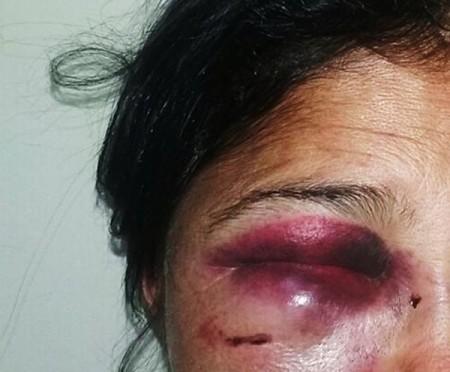 Mulher é agredida pelo amásio com golpe de panela de pressão quente